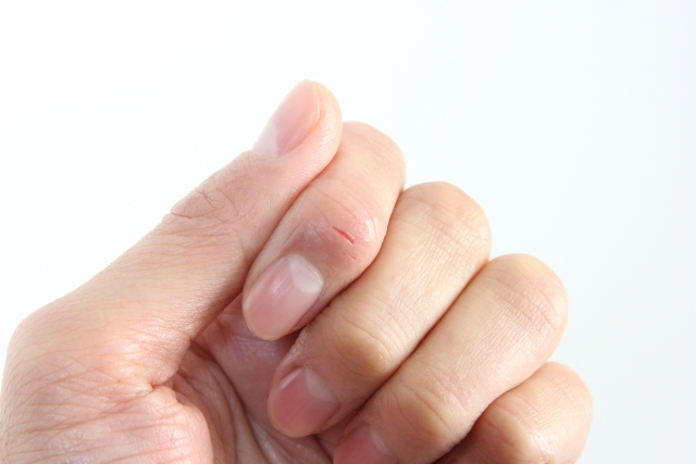 221.atopy-of-hand3