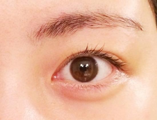 283.eye-drops-02